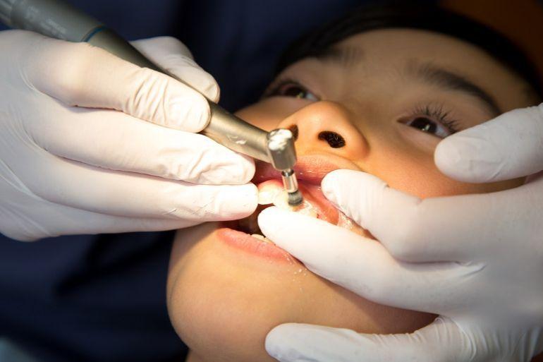 口腔内の不衛生が原因のとき