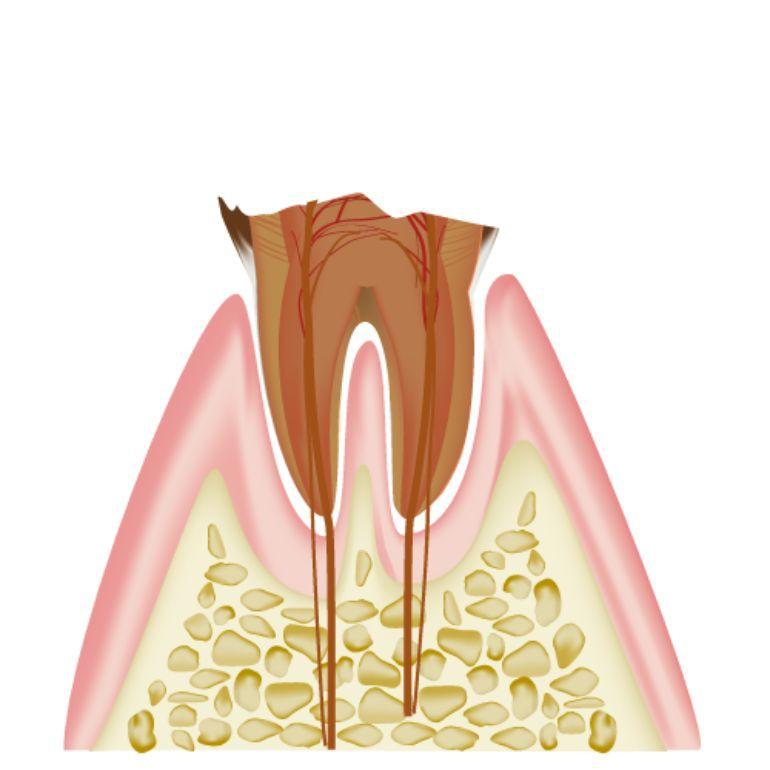 C4 歯根まで達したむし歯