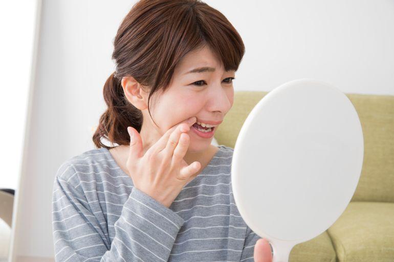 ホルモンバランスの変化による歯ぐきの腫れ